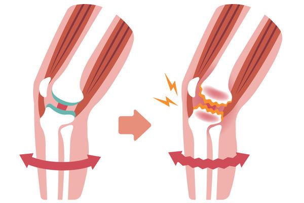 gonartroza 4 grade ale tratamentului articulației genunchiului calmante puternice pentru artroza articulației șoldului