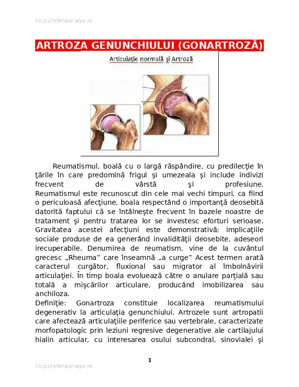 gradul de artroză a genunchiului radiografic