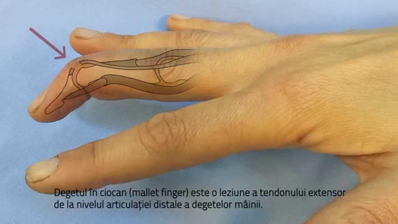 dureri nervoase severe în articulația umărului artroza forumului de tratare a mâinilor