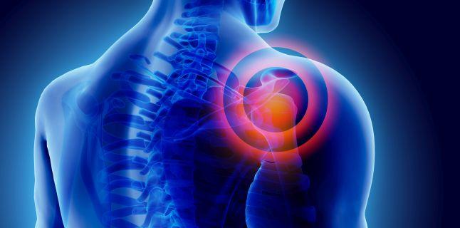 inflamația capsulei articulației umărului