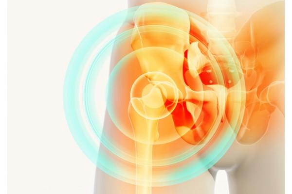 Cum să tratezi inflamația tendonului șoldului, Ce este tendinita?