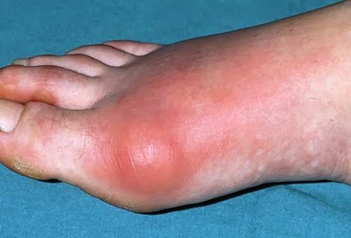 inflamație acută purulentă a articulațiilor