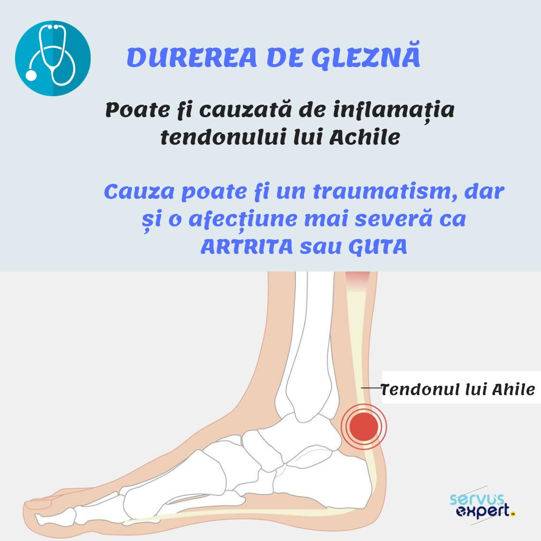 medicamente pentru flexibilitate comună cu durere în articulațiile genunchiului