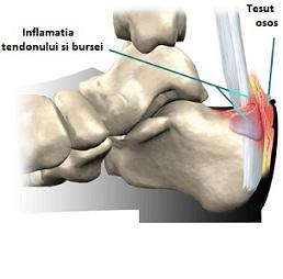 inflamație în articulația gleznei
