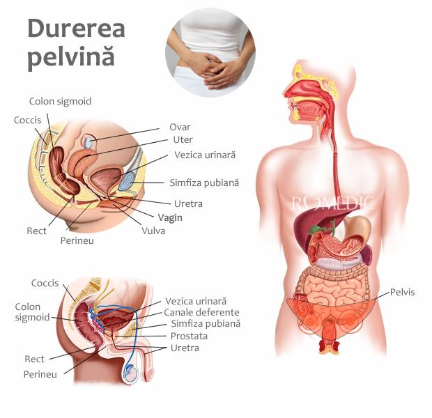 Boala inflamatorie pelvina - Medsana Romania