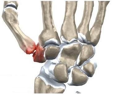 istoric medical dislocare la încheietura mâinii dă clic pe articulația umărului și umărul doare