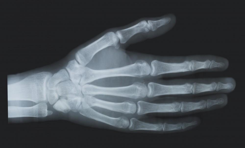 leziuni osoase și articulare