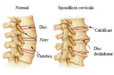 Tasarile vertebrale – cauze si tratament