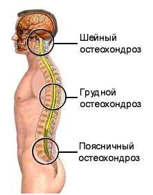 Medicamente vasodilatatoare pentru osteochondroza coloanei vertebrale toracice