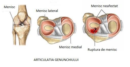 meniscul simptomelor leziunilor articulației genunchiului
