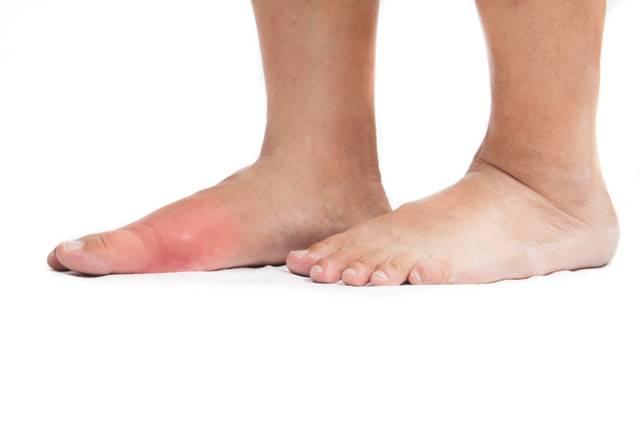 mâncărimi rănite dureri severe la nivelul articulațiilor mâinii drepte