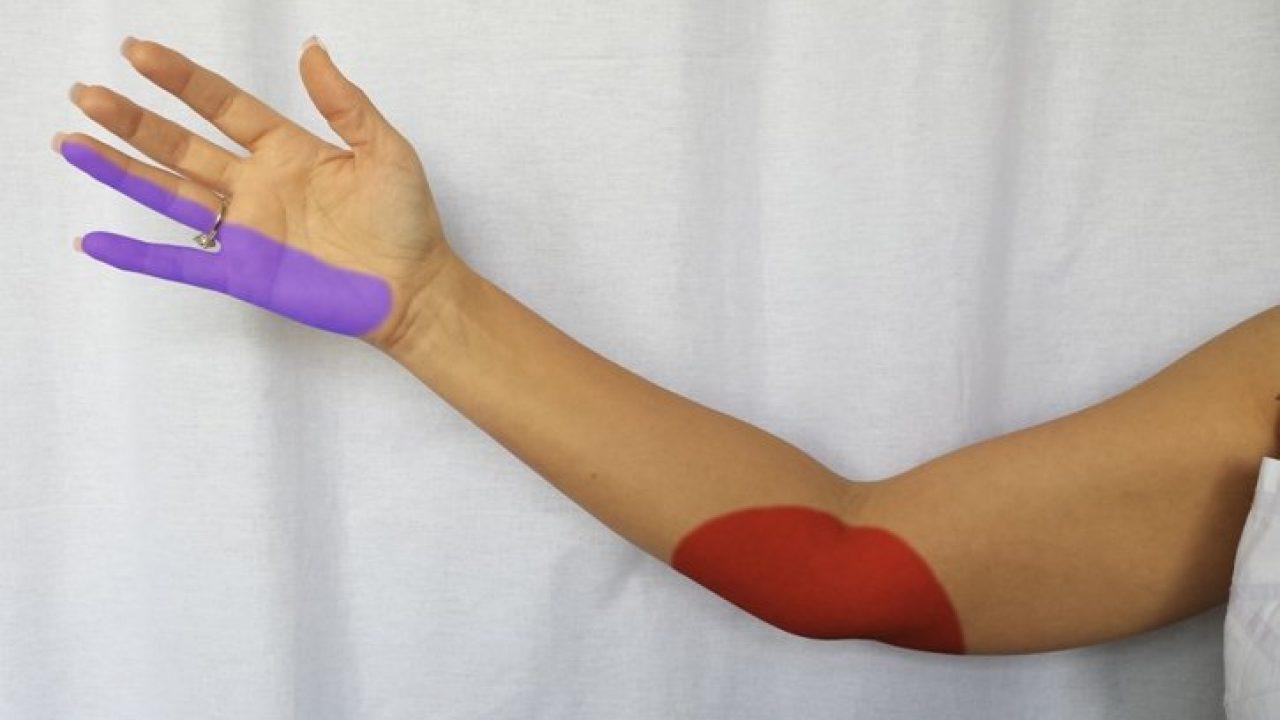 nervul ciupit în articulația cotului cum să tratezi