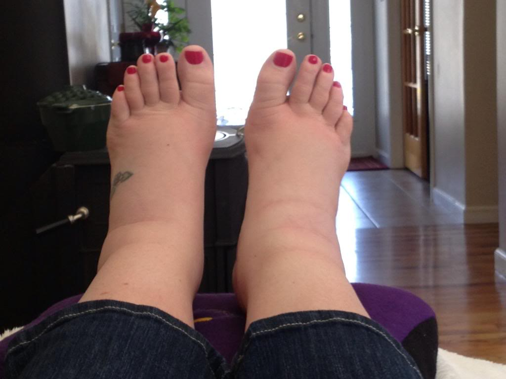 picior umflat tratament cum se tratează artroza cotului cu 1-2 grade