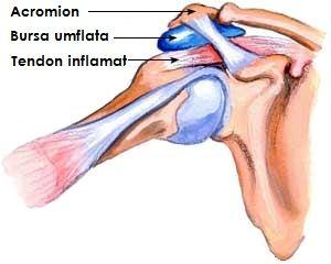 schema de tratament pentru bursita articulației șoldului