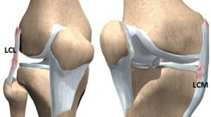 semne de leziuni la genunchi