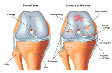 simptome și tratament de artroză vagă băi de sodă pentru dureri articulare