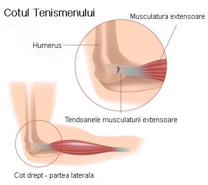 simptomele de tratament cu epicondilita cotului aderențe în tratamentul articulațiilor umărului