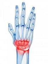 simptomele și tratamentul osteoartrozei la încheietura mâinii