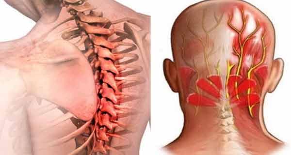 toți mușchii și articulațiile doare după iradiere