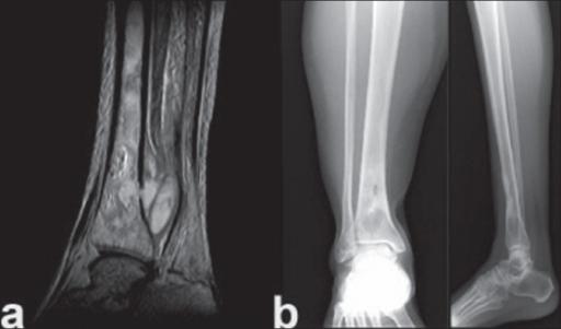 Osteomielita, dusmanul sistemului osos