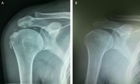 teraflex cu artroza articulației gleznei durere în articulațiile șoldului decât pentru a ușura