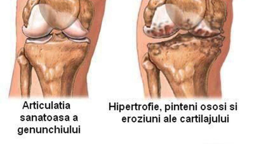 Tratament bioptron la genunchi. Terapie cu lumină împotriva durerilor reumatice