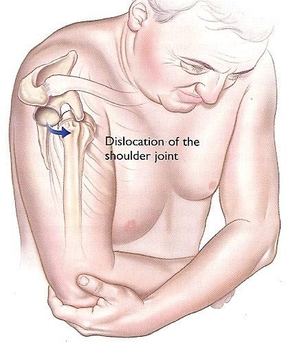 tratament după luxația articulației umărului