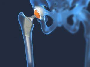 de ce glucozamină și condroitină artroza metodei moderne de tratament a articulației genunchiului