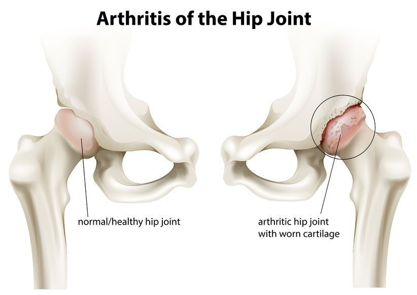 tratament coxartroză gonartroză articulară durere dureroasă severă la genunchi
