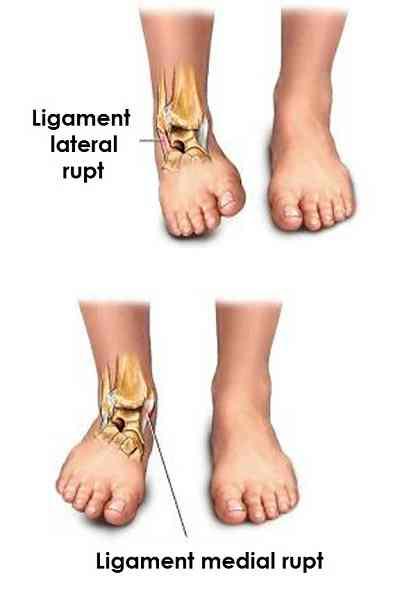 durere sub tratamentul genunchiului care remediu pentru durerile articulare este mai bun