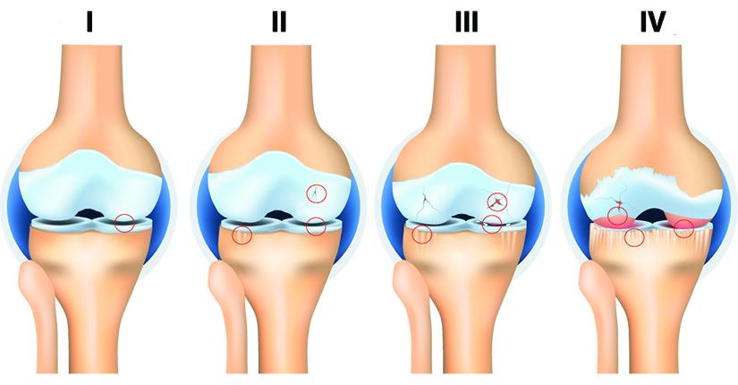 4 grad de artroză a articulației șoldului umflarea articulației 3 degete