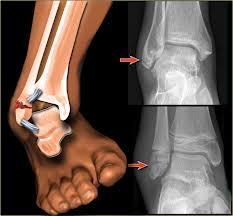 Tratamentul fracturii gleznei de deplasare