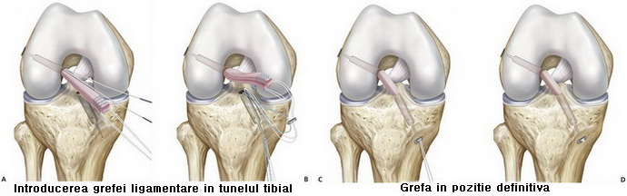 Ruptura Ligament Încrucişat Anterior (LIA) | Ortopedia pe Înţelesul Tuturor
