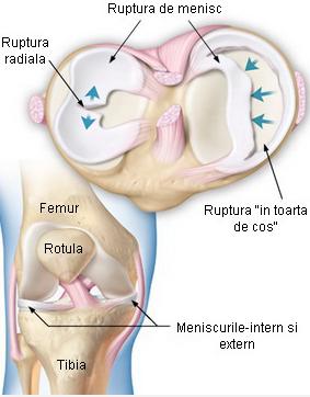 traumatism la meniscul articulației genunchiului cornului