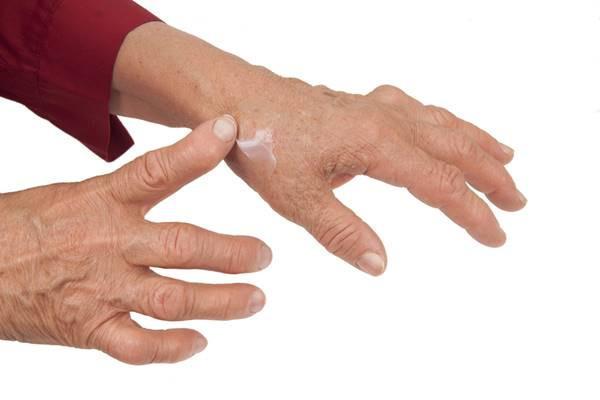 umflarea articulațiilor mici