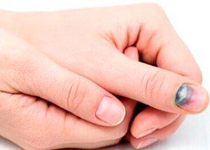Umflarea și hematomul articulației degetului. Umflarea venei pe deget