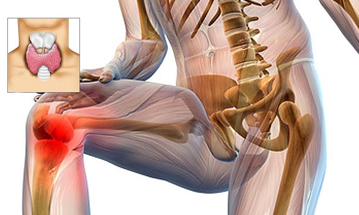 vegetarianismul și bolile articulare tratamentul artrozei difuze