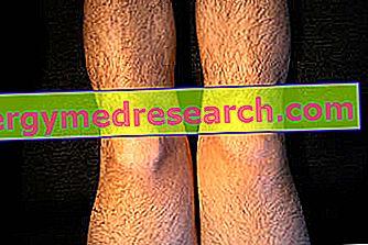 artrita complicațiilor articulației genunchiului