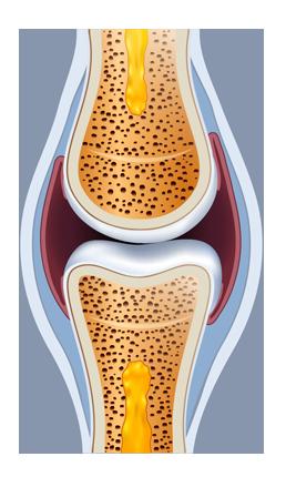 dureri articulare și antrenament artroza tratamentului de gradul II fără intervenție chirurgicală