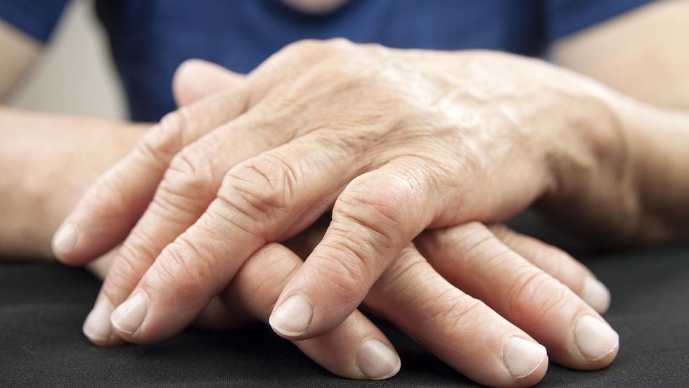Poliartrita Reumatoida: Simptome • Poze • Analize • Tratament - infostraja.ro