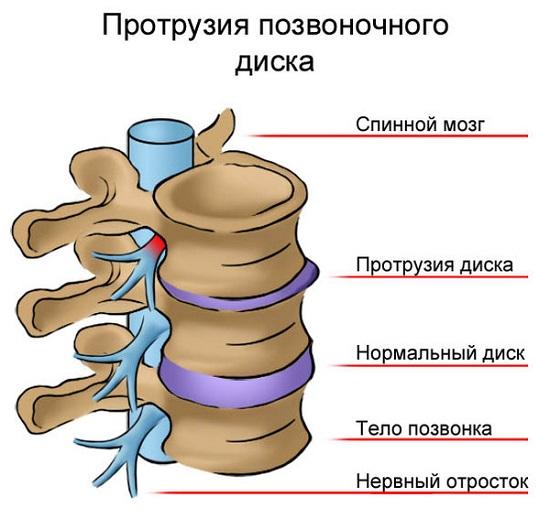 dacă doare spatele și articulațiile