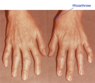 artrita medicamentelor cu degetul mare pentru a trata