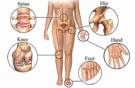 articulațiile doare ce să facă brațele picioare