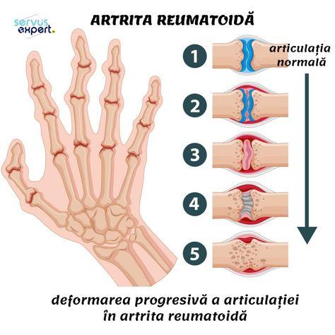 как лечить щеточный сустав artroză de 3 grade decât pentru a trata