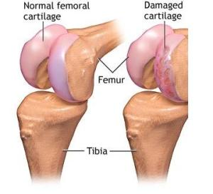 deteriorarea cartilajului la genunchi cremă pentru articulațiile genunchiului