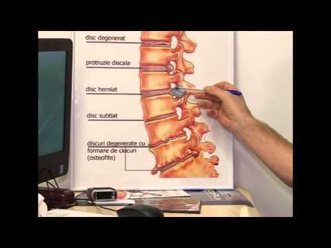 pareza tratamentului articulației gleznei