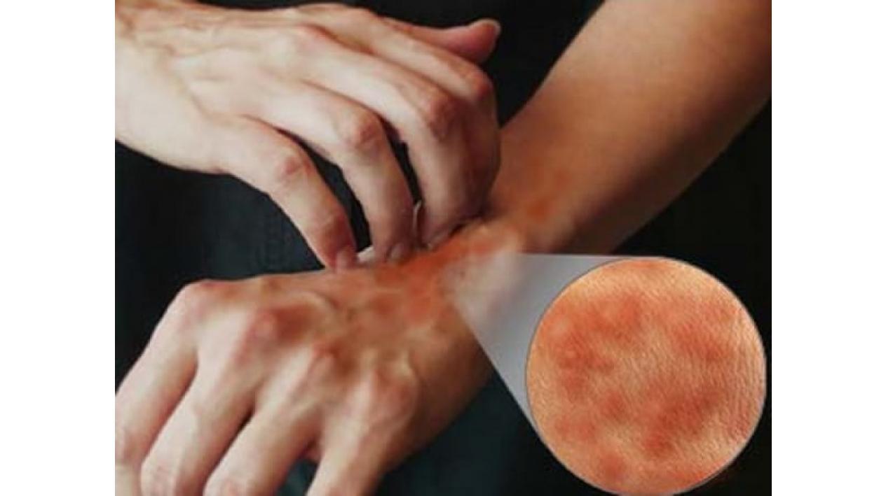 cu alergii  dureri articulare