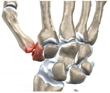 Dureri severe la nivelul articulațiilor mâinii drepte