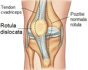 afectarea nervilor în articulația gleznei dimexid și tratament articular