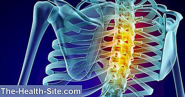 Ameliorarea sau eliminarea durerii prin infiltrațiile lombare